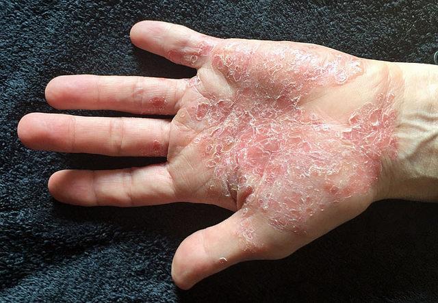 teebaumöl gegen schuppenflechte hand